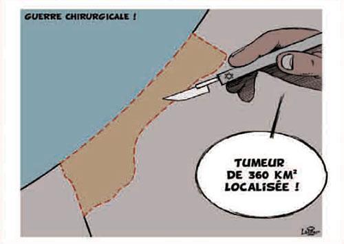 Guerre chirurgicale - Vitamine - Le Soir d'Algérie - Gagdz.com